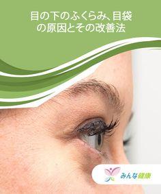 目の下のふくらみ、目袋の原因とその改善法  目の下のふくらみ、目袋は、疲れによって出来ることが多いのですが、体のなにかしらの不調を訴えている場合もあります。