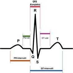 Sydänsähkökäyrä – Wikipedia