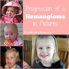 Progression of a Hemangioma in Pictures | Real Fit, Real Food Mom