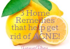 Forever Fitore-3 Home Remedies that help get rid of Acne