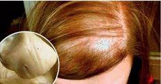 Decrete o Fim da Queda de Cabelo com esta Mistura de 4 Ingredientes! Natural Hair Treatments, Hair Loss Treatment, Beauty Care, Beauty Hacks, Hair Beauty, Curly Hair Styles, Natural Hair Styles, Beautiful Long Hair, Tips Belleza