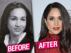 Meghan Markle Nose Job Exposed By Top Docs thumbnailPlastic Princess! Meghan Markle Nose Job Exposed By Top Docs thumbnail Plastic Surgery Photos, Celebrity Plastic Surgery, Meghan Markle Nose Job, Meghan Markle Hair, Meghan Markle Plastic Surgery, Top Plastic Surgeons, Beauty Makeover, Celebrities Then And Now, Princess Meghan