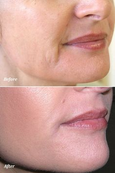 Dermal Fillers: Before & After!