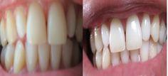 dentes mais brancos sem ir ao dentista