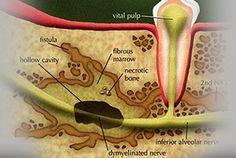 Toxic Bacteria in Teeth Contributes to Illness throughout the Body – Dental Implants Dentist in Silver Spring, MD Implant Dentist, Teeth Implants, Dental Hygienist, Dental Care, Wisdom Teeth Removal, Dental Bridge, Teeth Health, Teeth Care, Cosmetic Dentistry