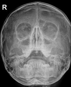 Acute maxillary sinusitis | Radiology Case | Radiopaedia.org Paranasal Sinuses, Maxillary Sinus, Nasal Septum, Black Eyebrows, Post Traumatic, Radiology, Head And Neck, Almost Always, How To Become