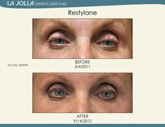Patient treated with Restylane at La Jolla Cosmetic Laser Clinic.