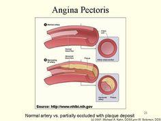 Angina Pectoris Beschrijving: Een drukkende, respectievelijk zwaar gevoel en/of pijn midden op de borst.  Oorzaken: Onvoldoende bloedtoevoer naar de hartspier, waardoor het zijn werk minder kan doen. Dit komt door een embolie of door trombus. Behandeling: de bloedvaten medicamenteus verwijderen, de inspanning terug brengen en de bloeddruk verlagen