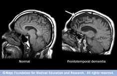 What is Frontotemporal Dementia and is it inheritable? http://www.bostonglobe.com/lifestyle/health-wellness/2014/09/28/health-answers-what-frontotemporal-dementia-and-inheritable/qQjnRS4LvFiZaTu59FEgnN/story.html #alzheimers #mindcrowd #tgen www.mindcrowd.org