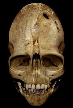 The Andover Skull
