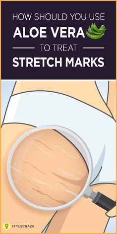 Come on, confess—you have stretch marks, don't you? Most of us worry about how to hide stretch marks. But there isn't much you can do to prevent them. One of the best ways to take care of stretch marks is by using the magical properties of aloe vera. Aloe Vera Uses, Aloe Vera For Skin, Aloe Vera On Face, Aloe Vera Skin Care, Aloe Vera Maske, Stretch Marks On Thighs, Aloe Vera Stretch Marks, How To Remove Stretch Marks, White Stretch Marks