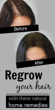 Natural hair regrowth is really possible with this amazing h.- Natural hair regrowth is really possible with this amazing hair mask Natural Hair Regrowth Is Possible With These 5 Miraculous Home Remedies - Natural Hair Regrowth, Natural Hair Care Tips, Natural Skin Care, Natural Hair Styles, Natural Beauty, Natural Oils, Playing With Hair, Hair Loss Remedies, Hair Thickening Remedies
