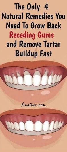 Grow Back Your Receding Gums In No Time With The Help Of These Natural Remedies - Mundhygiene Natural Health Remedies, Herbal Remedies, Holistic Remedies, Natural Health Tips, Natural Cures, Grow Back Receding Gums, Reverse Receding Gums, Cooking With Turmeric, Heal Cavities