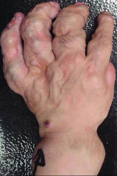 Maffucci syndrome is a rare disorder is characterized by enchondromas, bone deformities with venous malformations with or without spindle cell hemangiomas.
