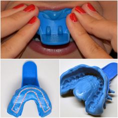 Teeth Whitening Trays (Custom Fitted) by SmileBrilliant.com