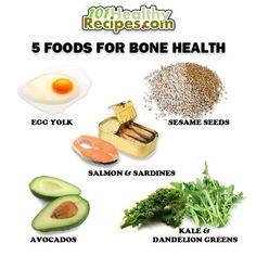 Foods for Bone Health--many are good sources of Vitamin A