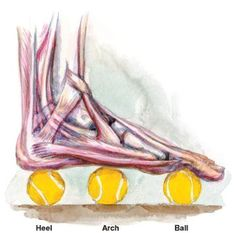 Have you been suffering from the pain of Plantar Fasciitis?