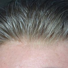 Image result for how to ventilate realistic hairlines