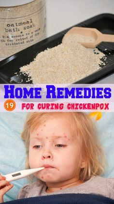 homeremedyshop:  19 Home Remedies for Curing Chickenpox