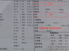 A Successful Case Of Chinese Medicine Treatment On Nephrotic Syndrome