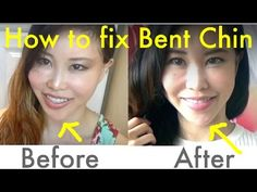 Spoon Exercise for Bent Chin/Jawline | How to Fix Asymmetrical Face