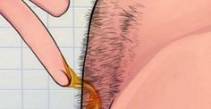IMPRESSIVE! How To Naturally Remove Body Hair Permanently (No Waxing Or Shaving)