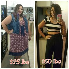Before and After 215 lb weight loss! VSG Gastric Sleeve before and after. Anything is possible.
