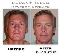 Ladies, check your husbands.  Reverse skin and sun damage using Rodan and Fields http://www.asap.myrandrf.com