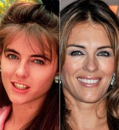 Liz Hurley before and after Elizabeth Hurley, Teeth Whitening Remedies, Teeth Whitening System, Celebrities Before And After, Celebrities Then And Now, Celebrity Smiles, Celebrity Teeth, Perfect Teeth, Celebrity Plastic Surgery