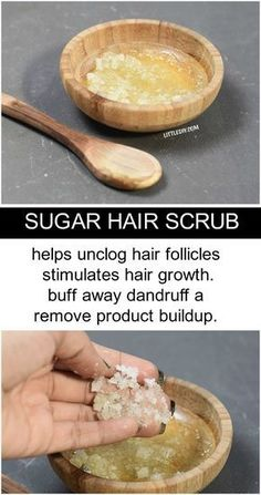 oily hair Dandruff and excessive oiliness and gunk can make your hair look sticky and dull. Also, the flakes arent attractive and with time can make your hair smell yeasty which isnt Hair Dandruff, Dandruff Remedy, Itchy Scalp Remedy, Natural Hair Care, Natural Hair Styles, Natural Beauty, Oily Hair Remedies, Scalp Scrub, Getting Rid Of Dandruff
