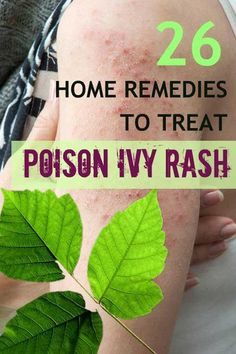 26 House Cures to Get Rid of Poison Ivy - Feminiya. >> Discover even more by visiting the picture