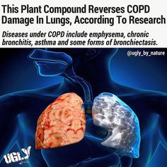 30 million people in the United States are affected by COPD. Over time COPD can get progressively worse and negatively affect breathing. Symptoms include increased breathlessness wheezing tightness in the chest and frequent coughing. In 2014 COPD was the third leading cause of death in the U.S.  COPD most often occurs in people 40 or over who have a history of smoking. COPD can develop based on purely genetic factors. Alpha-1 Antitrypsin Deficiency is the most commonly known genetic risk…