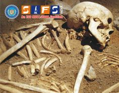 Forensic #Anthropology Services to analysis Sex, Age, Height, hair