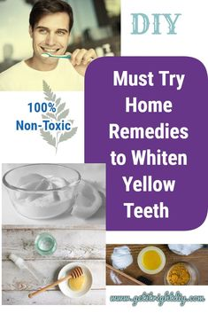 White teeth can make someone more attractive and confident. You do not need to spend a fortune to whiten your teeth that you should give these home remedies a try to solve your problem Natural Teeth Whitening, Whitening Kit, Teeth Whiting At Home, Make Teeth Whiter, Teeth Bleaching, Stained Teeth, Healthy Teeth, Home Remedies, Confident