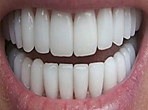 1 Tip That Finally Turned Yellow Teeth White