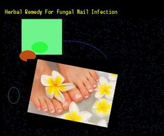 Herbal remedy for fungal nail infection - Nail Fungus Remedy. You have nothing to lose! Visit Site Now