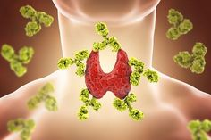 One of the main causes of hyperthyroidism is Graves' Disease. Graves' Disease, an autoimmune disease that sees an individual's thyroid gland as a foreign object Low Thyroid, Thyroid Cancer, Thyroid Gland, Thyroid Disease, Thyroid Hormone, Thyroid Health, Autoimmune Disease, Hypothyroidism Symptoms, Adrenal Glands
