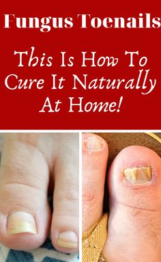 When you start to notice discoloration in your toenails, it might be a sign that you have a case of onychomycosis. Discover here how to deal with this problem! Fungus Toenails, Toe Fungus, Toenail Fungus Remedies, Toenail Fungus Treatment, Healthy Habits, Healthy Tips, Nail Health Signs, Toe Nail Discoloration, Nail Problems