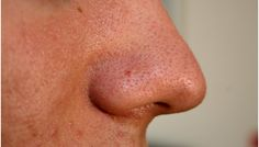11 Different Types Of Acne And How To Identify Them?