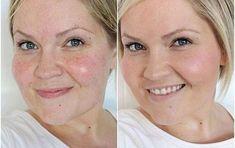 The House of Smiths - Flawless Skin Makeup tutorial. Side note, she is so gorgeous! Rosacea Makeup, Best Makeup For Rosacea, Flawless Skin Makeup, Makeup Contouring, Beauty Secrets, Beauty Hacks, Beauty Ideas, Beauty Skin, Hair Beauty