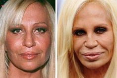 Donatella Versace Facelift Plastic Surgery Before and After
