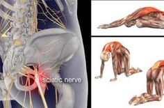 11 Piriformis Stretches to Get Rid of Sciatica, Hip, and Lower Back Pain – News 24 Fresh Treating Sciatica, Sciatica Stretches, Sciatica Symptoms, Sciatic Nerve Relief, Sciatica Pain Treatment, Sciatic Pain, Hip Pain, Back Pain, Stretch Routine