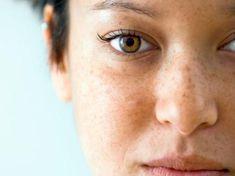 Ünlü Dermatoloji Uzmanın Tarifi İle Ciltteki Lekelerden Kurtulun - Şifalı Tarifler