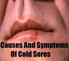 70 Best Cold Sore images in 2014 | Cold sore cure, Cold sore