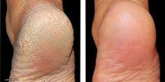 Viele Menschen gehen häufig zur Pediküre, damit sich ihre Füße wieder geschmeidig anfühlen. Es gibt Frauen, die sogar sehr häufig ihre Füße pflegen lassen. Zum Beispiel einmal in der Woche. Jede Behandlung der Füße kostet Geld. Geld, welches Du Dir auch sparen könntest. Denn es gibt 2 einfache Zutaten, die fast jeder im Haus haben sollte, mit denen Du Deine Füße gut von Zuhause aus behandeln kannst. Gehst Du auch regelmäßig zur Maniküre, damit sich Deine Füße wieder weich und gesund…