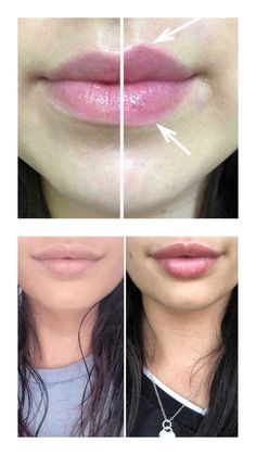 Put this lip plumping balm on and after 5 minutes fuller lips! More info & order on our website Peach Lips, Purple Lips, Ombre Lips, Nu Skin, Lip Plumping Balm, Lip Piercing Ring, Lips Illustration, Lips Painting, Loona Kim Lip