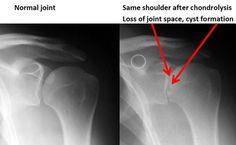Treatment of shoulder #chondrolysis #uw #orthopedics