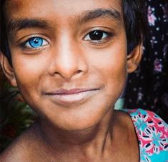 People have long been obsessed with blue eyes. On my trip to Japan, I had people on the street stop me so that they could take a picture of my blue eyes—numerous times. Pretty Eyes, Cool Eyes, Beautiful Eyes, Beautiful People, Amazing Eyes, Heterochromia Eyes, Change Your Eye Color, Colour Your Eyes, Hair Growth
