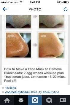 WANNA GET RID OF BLACKHEADS?! here's A Quick Face Mask That Will Do The Job!!!
