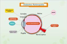 A diabetes retinopatia ou seja Retinopatia Diabética cerca de 80% dos pacientes. Portadores de diabetes tipo 1 há mais de 15 anos sofrem também de retinopatia, uma doença que afeta as retinas.